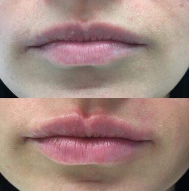 Lūpų putlinimas hialurono užpildu prieš ir po